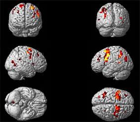 Con la risonanza magnetica funzionale è possibile osservare l'attività cerebrale mentre si svolgono alcune attività.